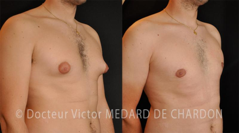 specialist-gynecomastia-breast-surgery-man