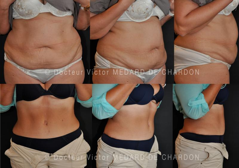 High tension abdominoplasty and circumferential liposuction