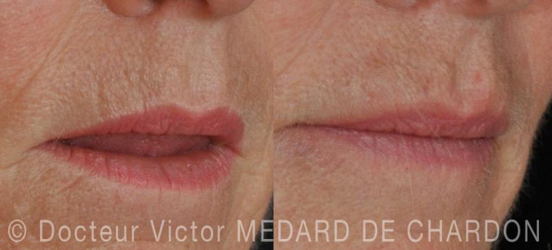 Hyaluronic acid injection into the lip wrinkles