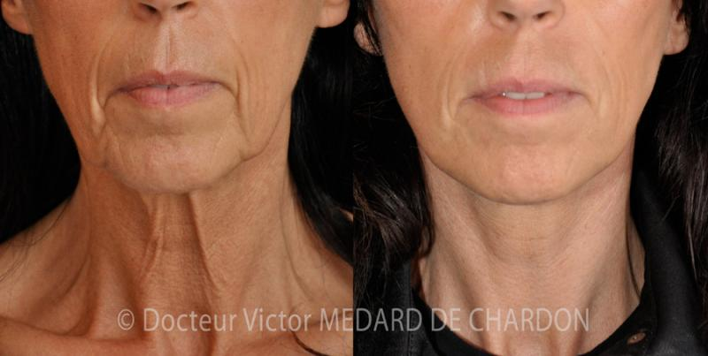 Loss of the facial contour and sagging neck