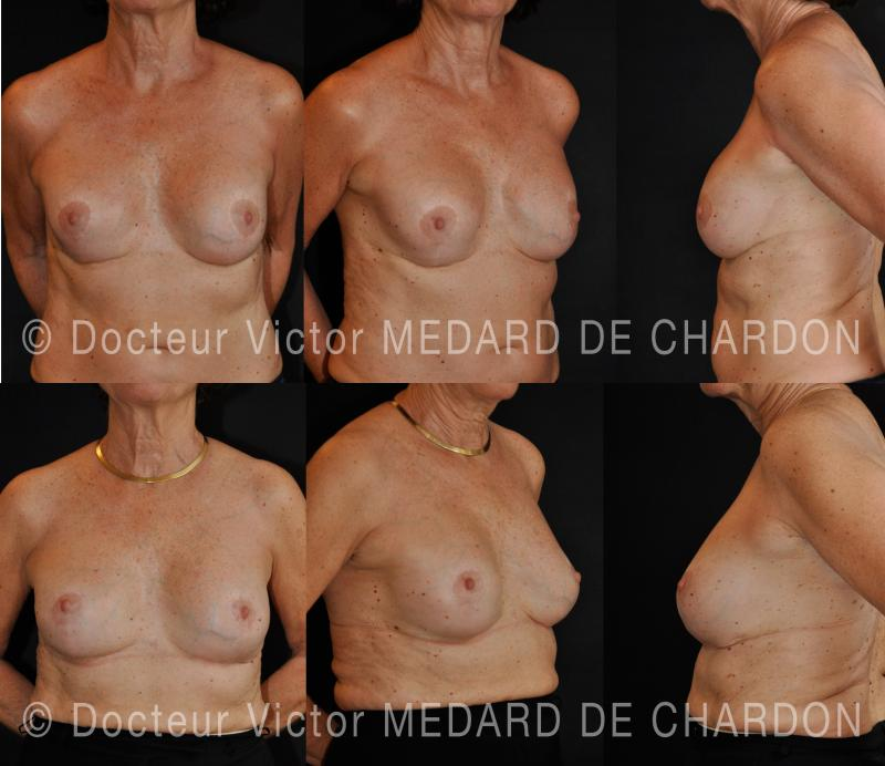 breast-implants-polyurethane-cannes-nice-riviera-antibes