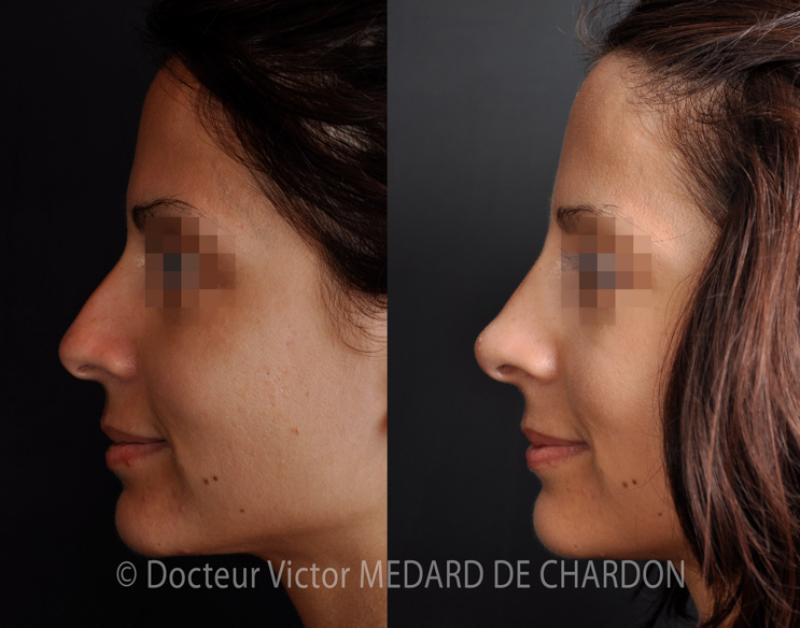 Medical rhinoplasty solely by hyaluronic acid injection