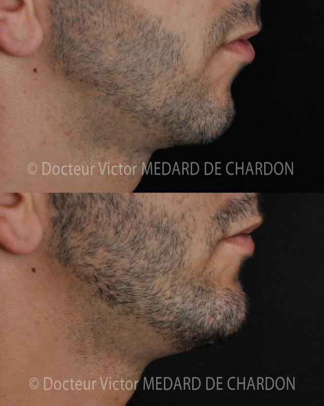 implant-chin-medpore