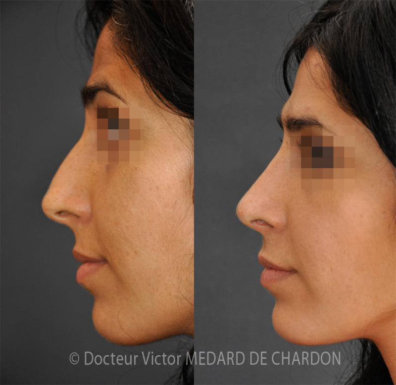 Natural rhinoplasty in a woman