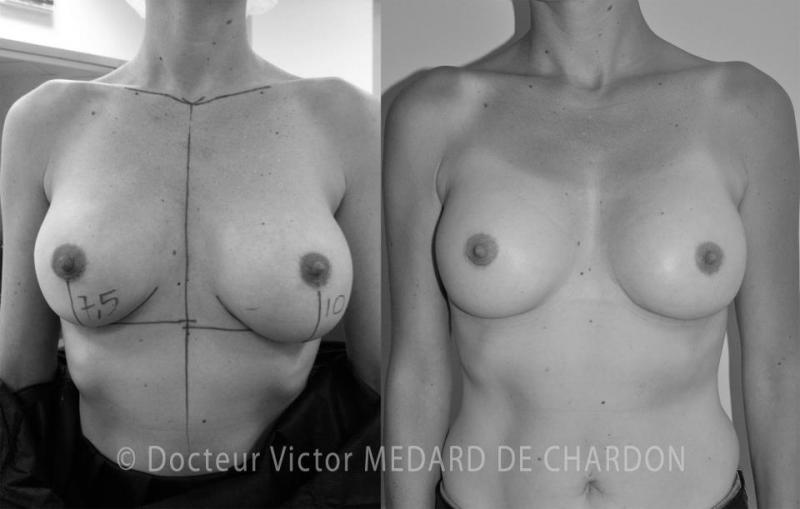 best-surgeon-breast-implants-cannes-nice