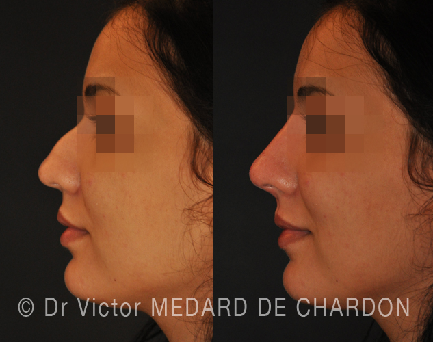 expert-medical-rhinoplasty