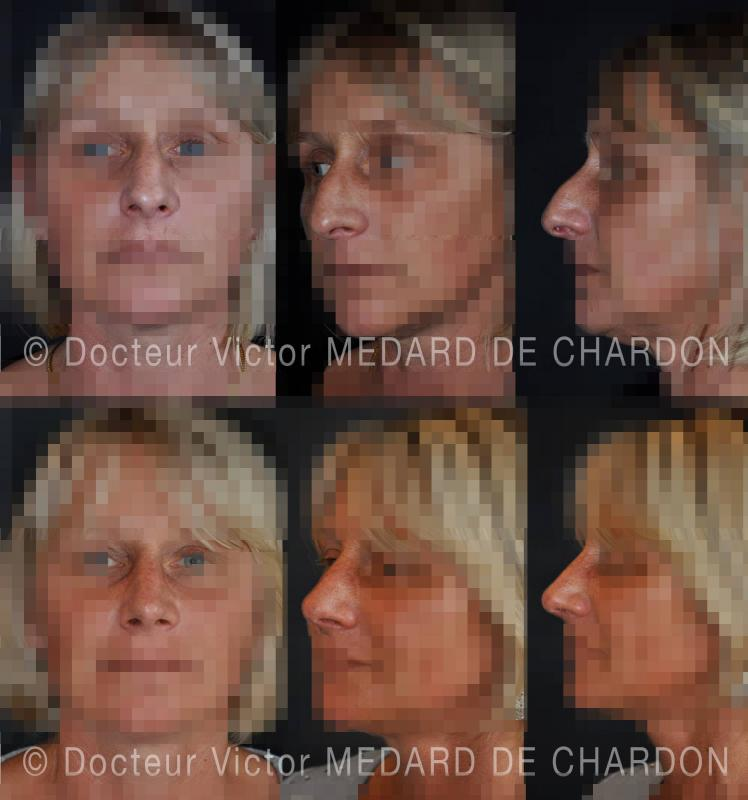 Open rhinoplasty: resection of the bump, lowering of sides of the nose and raising of the tip. Result at 6 months