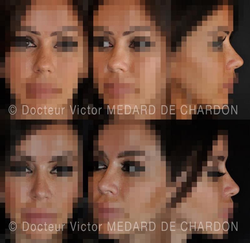 Rhinoplasty - Aesthetic surgery on the nose