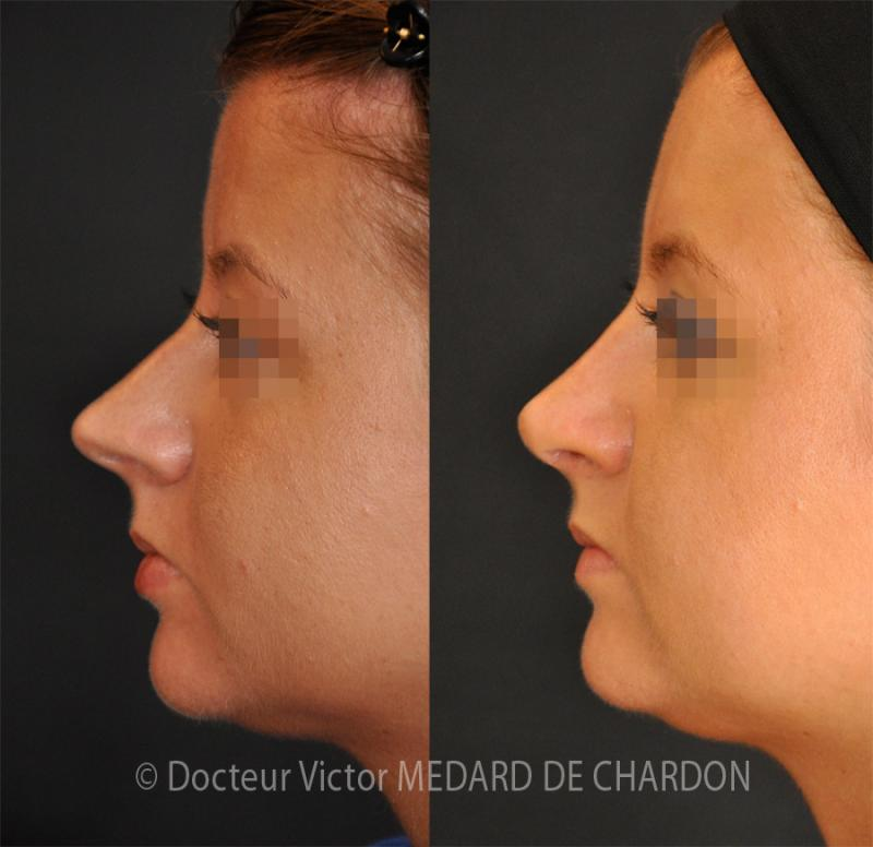 Profiloplasty: rhinoplasty and genioplasty