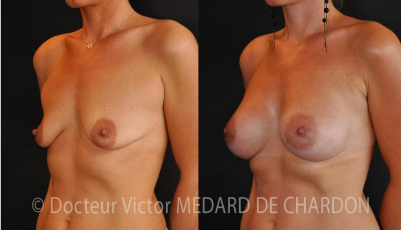 specialist-breast-implants-cannes-riviera