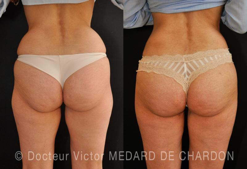 Remodelling of the buttocks