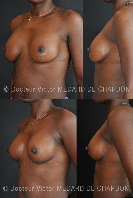 breast-augmentation-cannes-nice-antibes