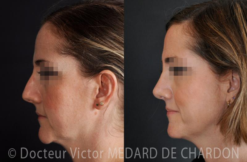 Rhinoplasty and genioplasty