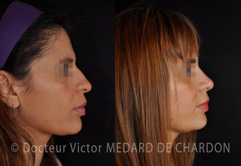 Rhinoplasty for broad-tip, bump and wide nostrils