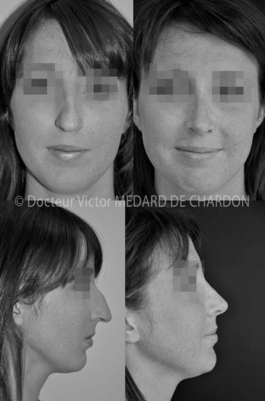 Rhinoplasty for long, crooked, kyphotic nose with bump and drooping tip