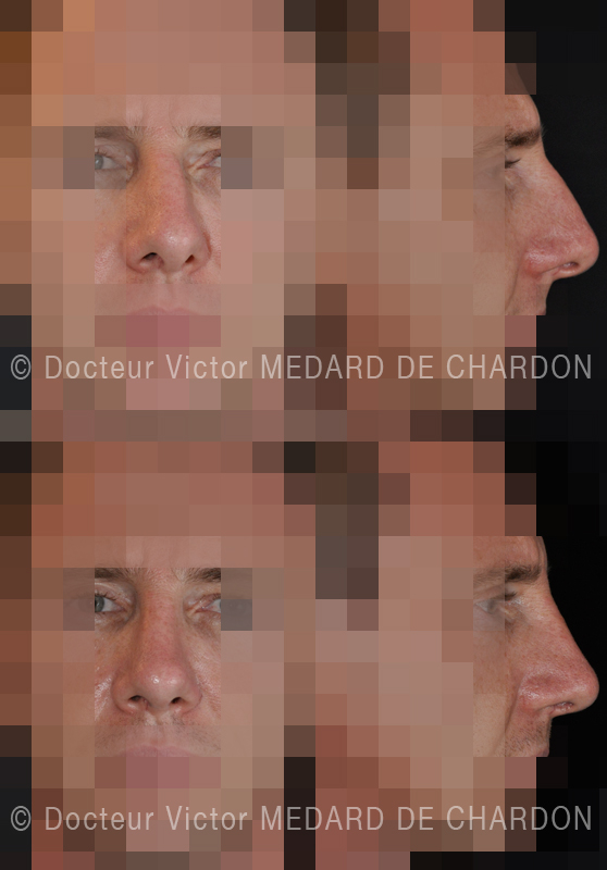 Rhinoplasty on crooked and obstructed nose