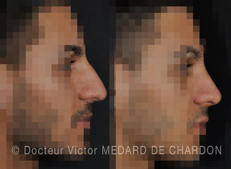 rhinoplasty-man-cannes-antibes-nice