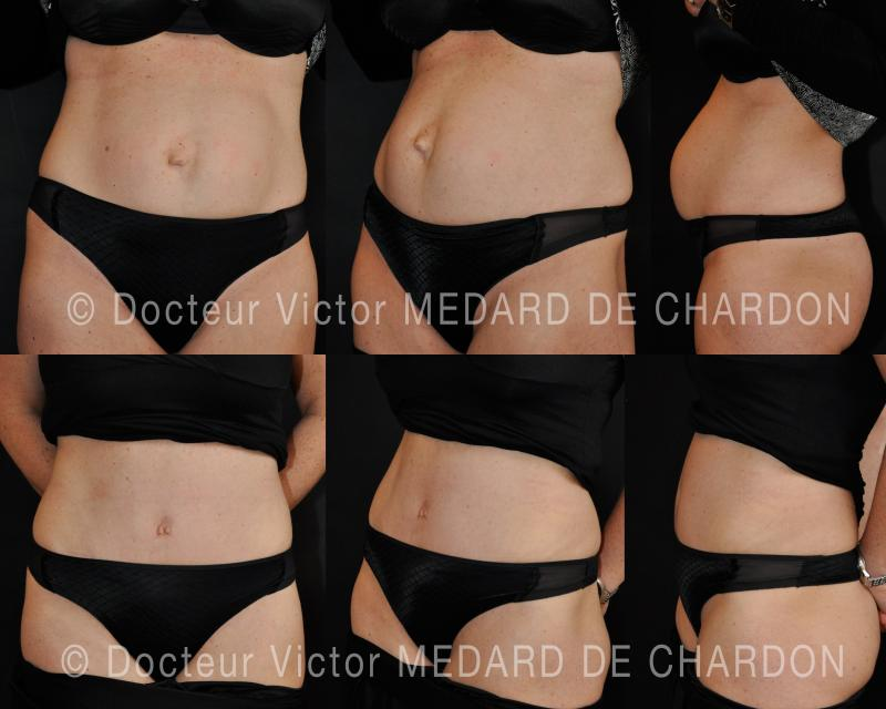 Round stomach over diastasis of rectus abdominis