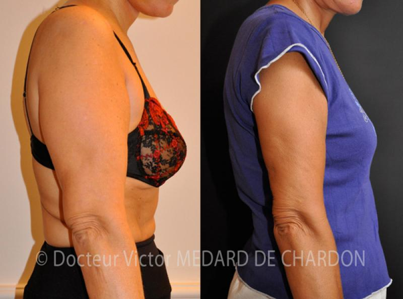 Sagging arms and excess fat