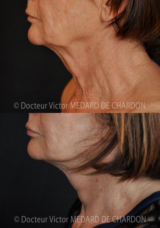 Sagging skin on neck and loss of facial contour
