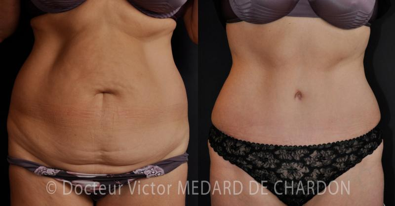 famous-surgeon-abdominoplasty-stomach-riviera