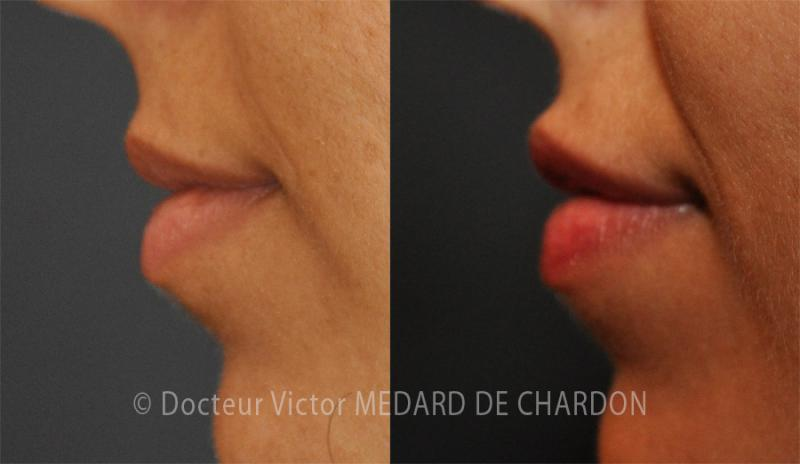 Small hyaluronic acid injection into the lip