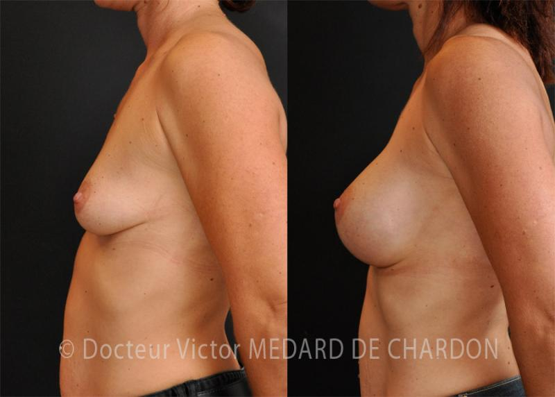 best-surgeon-beast-augmentation-implants-cannes-nice