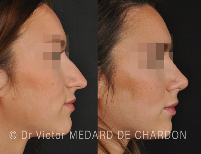 famous-surgeon-rhinoplasty