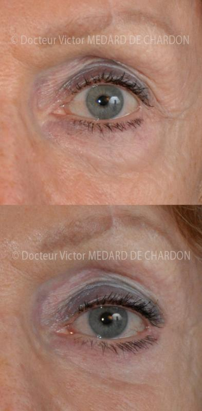 Surgery for excess skin from under lower eyelids