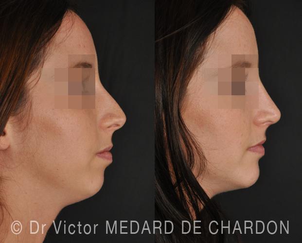 specialist-profiloplasty-cosmetic