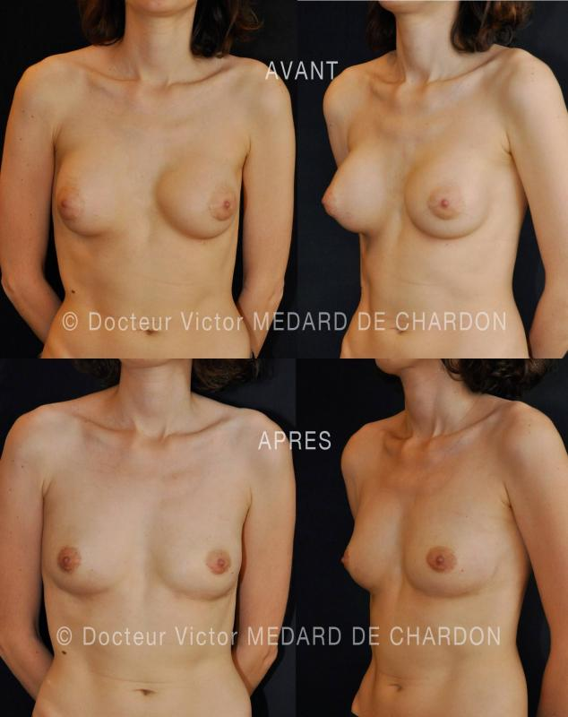 lipofilling-breast-augmentation-fat-injection