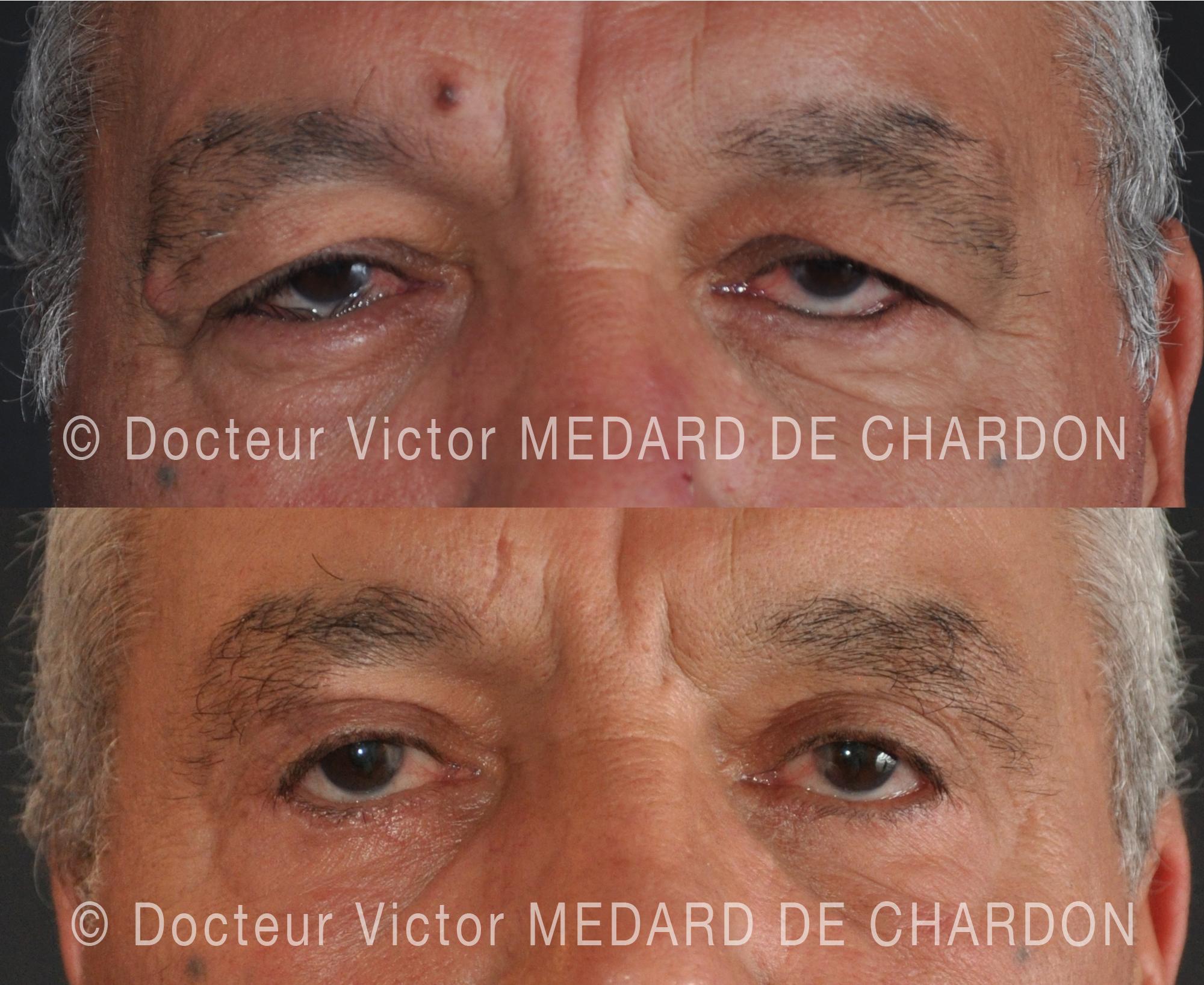 surgery-eyelids-nice
