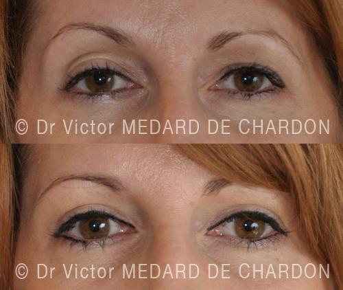 cosmetic-surgery-eyelids-nice