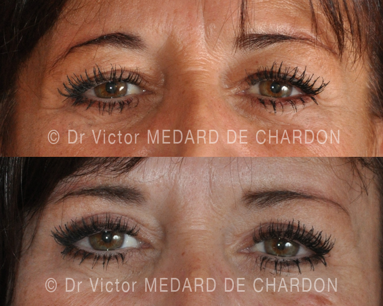 eyelid-blepharoplasty