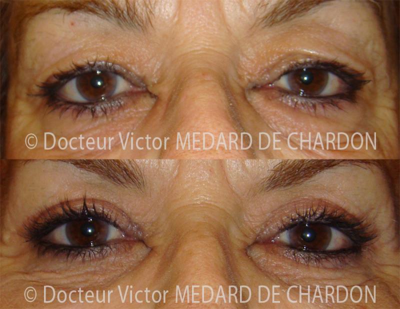 Upper eyelids surgery