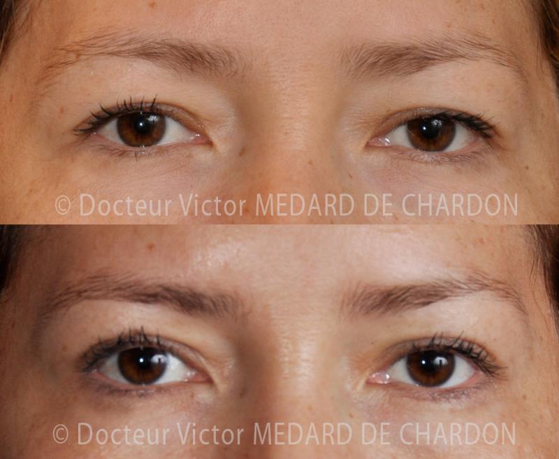 cosmetic-surgery-eyelids