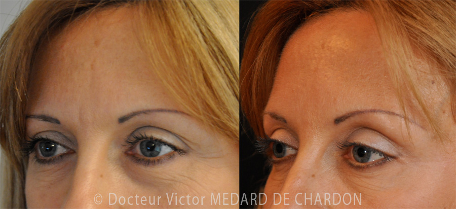 injection-botox-wrinkles-crows-feet-cannes-nice-antibes-var-monaco-alpes-maritimes