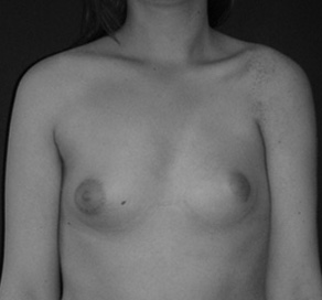 poland syndrome breast surgery cannes nice antibes monaco alpes maritimes paris