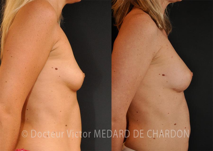 BREAST FAT TRANSFER cannes-paris-nice-monaco-alpes-maritimes-06-83