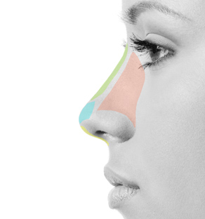 NON-SURGICAL MEDICAL RHINOPLASTY