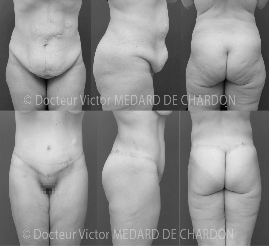 chirurgien-bodylift-nice-antibes-alpes-maritimes-var-06-83